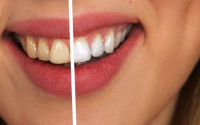 Ursachen von Zahnverfärbungen